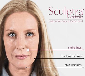 Ann Balducci, RN | Master Injector of Botox & Skincare