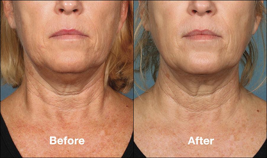 Ann Balducci, RN | Kybella® Removing Chin Fatness in Norwell Ma